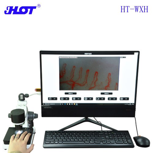 HOT HT-WXH Ultra-clear Wall Microcirculation Detector End Vessel Detector Blood Flow Velocimeter Archiving Contrast Video